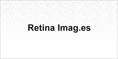 Retina Images - Automatically serve high-res images, to those who'll appreciate them.